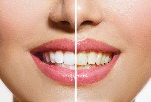 Which Teeth Whitening Methods Work Best