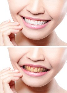 The Difference Between Home Tooth Whitening And Professional Whitening
