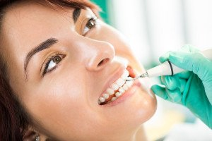 When Should You Go In For Teeth Cleaning?