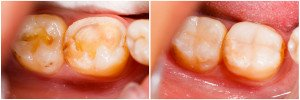 Are You Concerned About Receding Gums