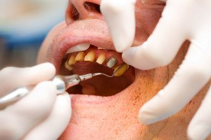 Understanding The Signs Of Gingivitis And Gum Disease