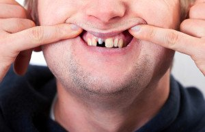 What Are The Main Reasons To Consider Oral Surgery For Dental Implants?