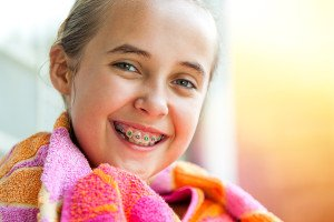 What You Should Know Before You Or Your Child Get Braces