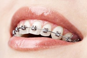 How To Tell If You're A Candidate For Getting Braces