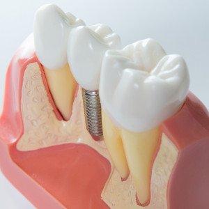 Why Do Dental Implants Sometimes Fail?