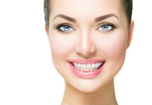 What You Should Know About Braces