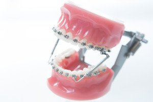 The Importance Of Jaw Alignment