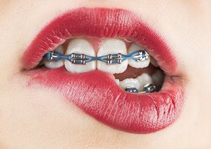 Braces Aren't Just About A Pretty Smile