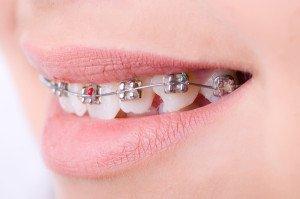 Braces And Good Dental Hygiene