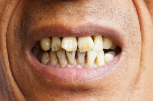 Smoking Negatively Impacts Your Oral Health
