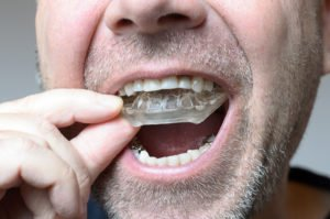 Teeth Grinding – Symptoms, Causes, And Solutions