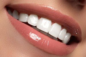 Keep Your Smile Bright – Avoid Foods That Stain Your Teeth