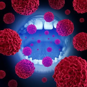 Oral Cancer – Causes, Warning Signs, And Treatment