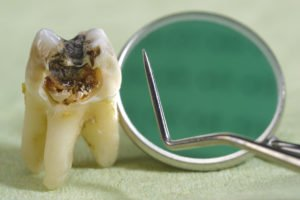 Tooth Extractions – What You Need To Know