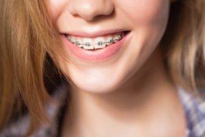 Wearing Braces Means Avoiding These Foods
