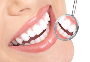 3 Common Teeth-Whitening Methods