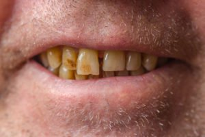 3 Ways To Stain Your Teeth