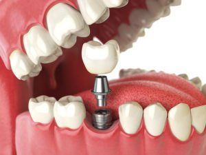 Take These Aspects Of Cosmetic Dentistry Into Account When Considering Dental Implants