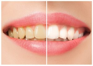 What Works In The Teeth Whitening Aisle?
