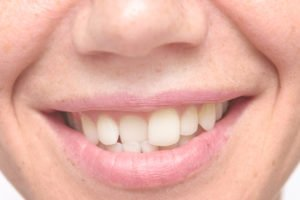Why You Should Care About Crooked Teeth
