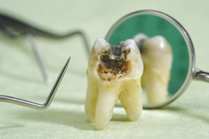 Could Aspirin Be The Solution To Tooth Decay?