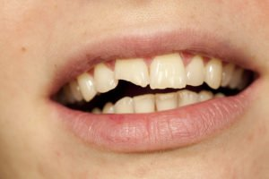 What To Do About A Broken Tooth